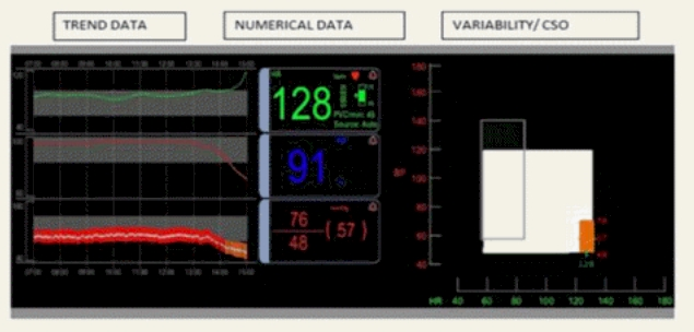 ICU Display Example